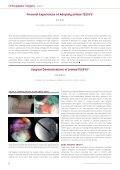 Endoscopic Spine Surgery – Now and Looking ... - joimax GmbH - Page 6
