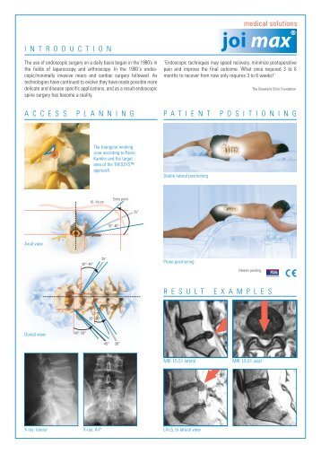Developments in the Area of Endoscopic Spine ... - joimax GmbH