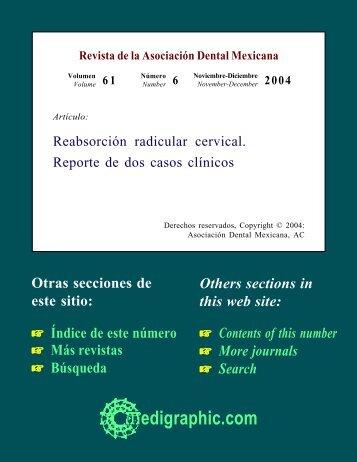 Reabsorción radicular cervical. Reporte de dos ... - edigraphic.com