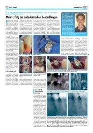 Mehr Erfolg bei endodontischen Behandlungen