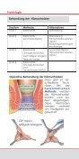 Proktologische (Enddarm) Erkrankungen Patienteninformation - Seite 6