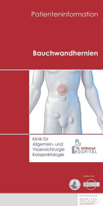 Bauchwandhernien - St. Willehad-Hospital
