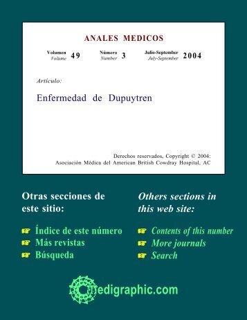 Enfermedad de Dupuytren - edigraphic.com