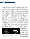 Einsatz der Echokardiographie bei der Reanimation - Seite 5