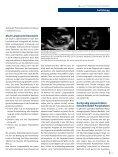 Einsatz der Echokardiographie bei der Reanimation - Seite 6