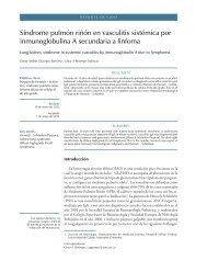 Síndrome pulmón riñón en vasculitis sistémica por inmunoglobulina ...
