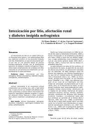 diabetes insípida litio utilizada para el alcohol