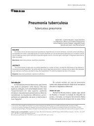 Pneumonia tuberculosa - Sociedade de Pneumologia e Tisiologia ...