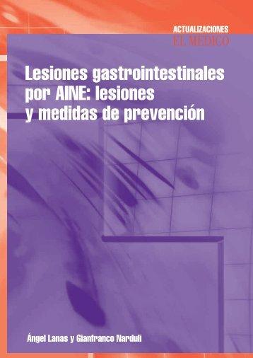 Lesiones gastrointestinales por AINE - El Médico Interactivo