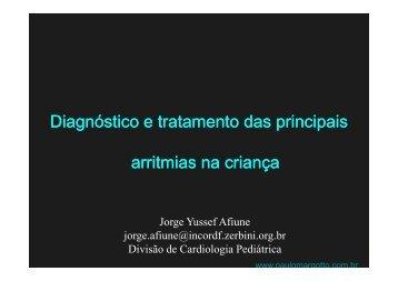 Diagnostico e Tratamento das Principais Arritmias ... - Portal Neonatal