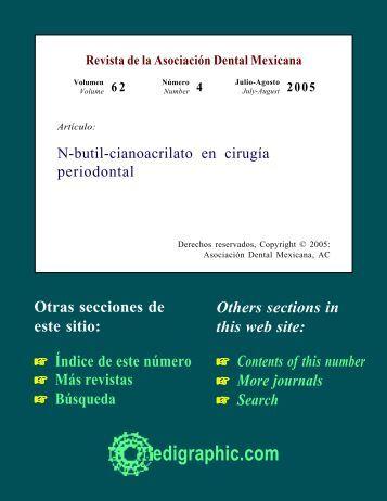 N-butil-cianoacrilato en cirugía periodontal - edigraphic.com