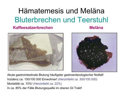 Hämatemesis Und Mälena Bluterbrechen Und Schwarzer Stuhl