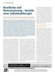 Brustkrebs und Metastasierung – Vorteile einer Individualtherapie