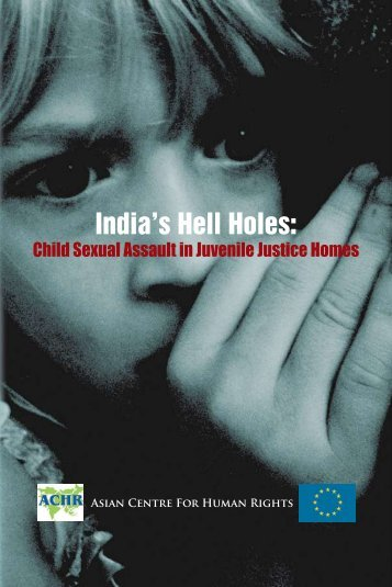 child sexual assault Evaluating the child for sexual abuse in cases of acute sexual assault, it is important to remember that performing tests for gonorrhea, chlamydia.