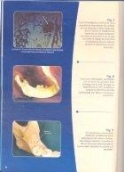 Tecnicas anestesicas en odontologia - Page 7