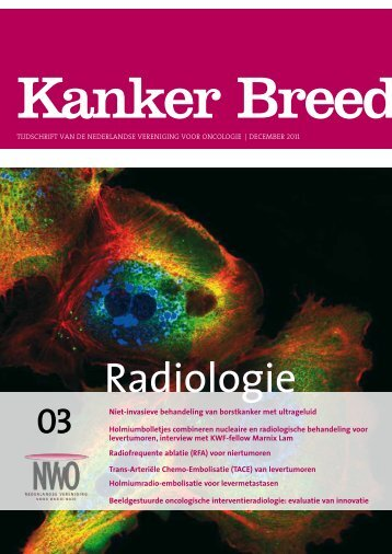 Radiologie - Nederlandse Vereniging voor Oncologie