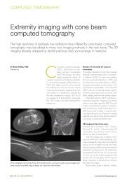 Extremity imaging with cone beam computed tomography