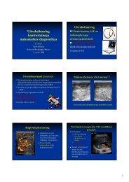 Ultraheliuuring kontrastainega maksakollete diagnostikas