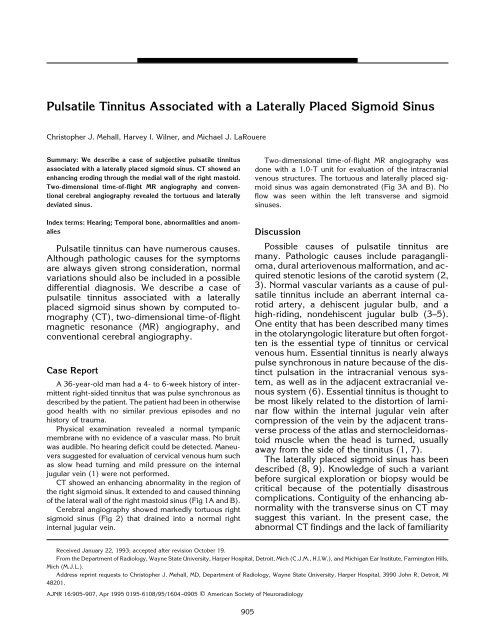 Pulsatile Tinnitus Associated with a Laterally Placed Sigmoid
