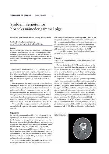 Sjælden hjernetumor hos seks måneder gammel pige - Ugeskrift for ...
