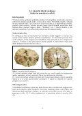 VAJA 1. Okvara, smrt in prilagoditve celice; patologija pigmentov - Page 4