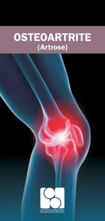Osteoartrite - Sociedade Brasileira de Reumatologia