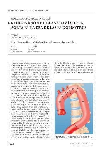 Aorta ascendente: