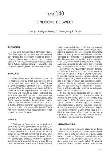 Tema 140 SÍNDROME DE SWEET - e-dermatosis.com