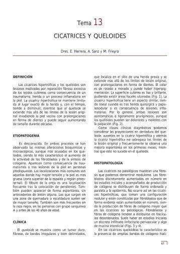 Tema 13 CICATRICES Y QUELOIDES - e-dermatosis.com
