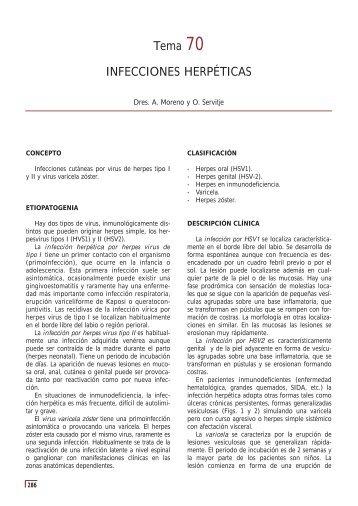 Tema 70 INFECCIONES HERPÉTICAS - e-dermatosis.com