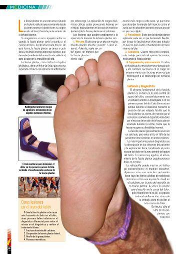 Fascitis plantar. (formato PDF) - Centro de Medicina Deportiva y ...