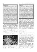 Preparering och montering av näbbvalen Valders skelett - Page 6