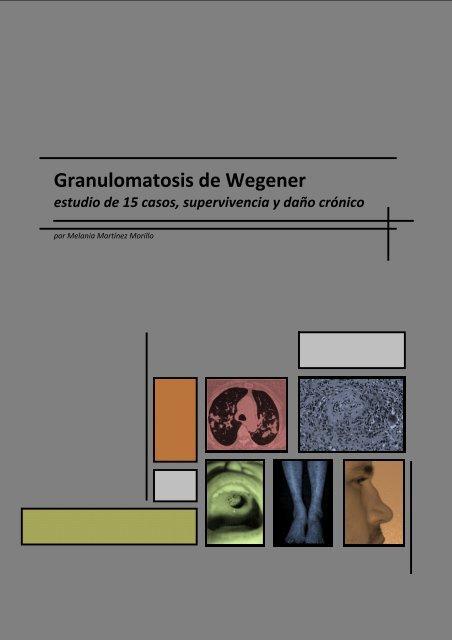 Granulomatosis de Wegener - Recercat