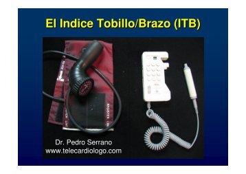 El Indice Tobillo/Brazo (ITB) - Telecardiologo.com