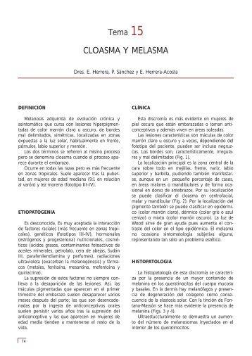 Tema 15 CLOASMA Y MELASMA - e-dermatosis.com