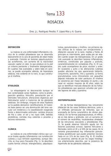 Tema 133 ROSÁCEA - e-dermatosis.com