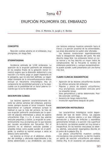 Tema 47 ERUPCIÓN POLIMORFA DEL ... - e-dermatosis.com