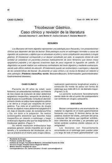 Tricobezoar Gástrico: Caso clínico y revisión de la literatura
