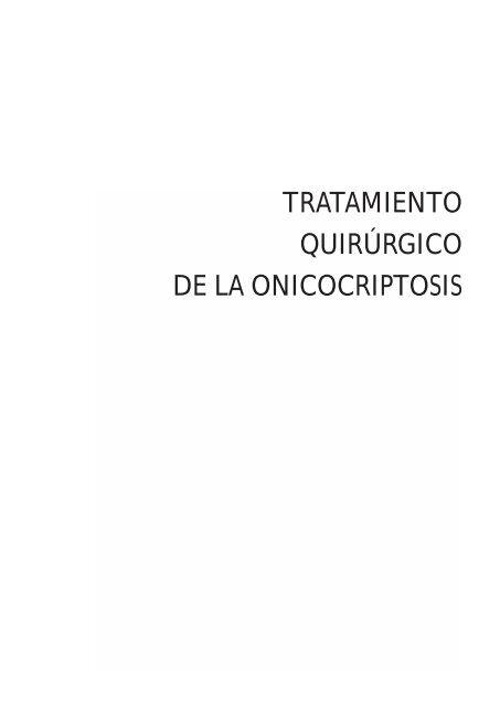 matricectomía con fenol en pacientes con diabetes
