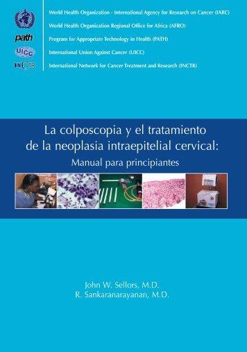 La colposcopia y el tratamiento de la neoplasia intraepitelial cervical: