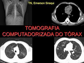 TOMOGRAFIA COMPUTADORIZADA DO TÓRAX - Comunidades