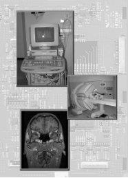 Ferramenta de Auxílio ao Diagnóstico em Neurologia - Unorp