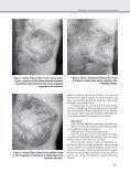 Cromomicosis de presentación clínica inusual - Page 2