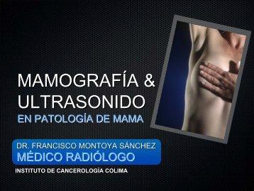 Mamografía y ultrasonido en patología de mama