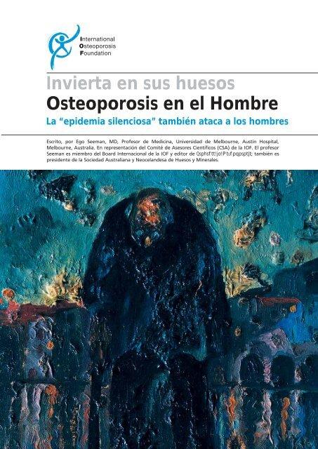 Invierta en sus huesos Osteoporosis en el Hombre - International ...