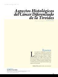 Aspectos Histológicos del Cáncer Diferenciado de la Tiroides
