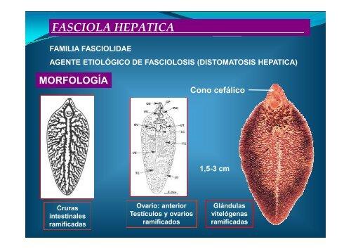 DUELAS HEPÁTICAS FASCIOLA HEPATICA ... - Personal.us.es