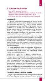 6. Cáncer de tiroides - Asociación Colombiana de Endocrinología
