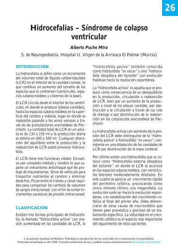 26. Hidrocefalias. Síndrome de colapso ventricular - Asociación ...