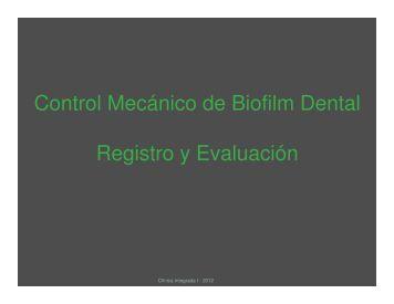 Control Mecánico de Biofilm Dental Registro y Evaluación
